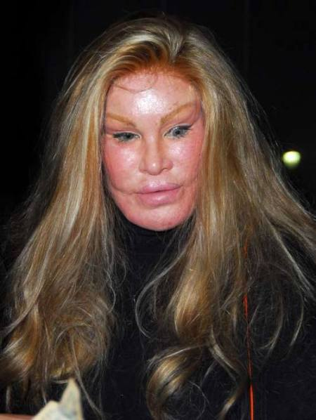 cat-woman-aka-jocelyn-wildenstein--large-msg-120343681936